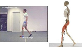 Gait analysis perry